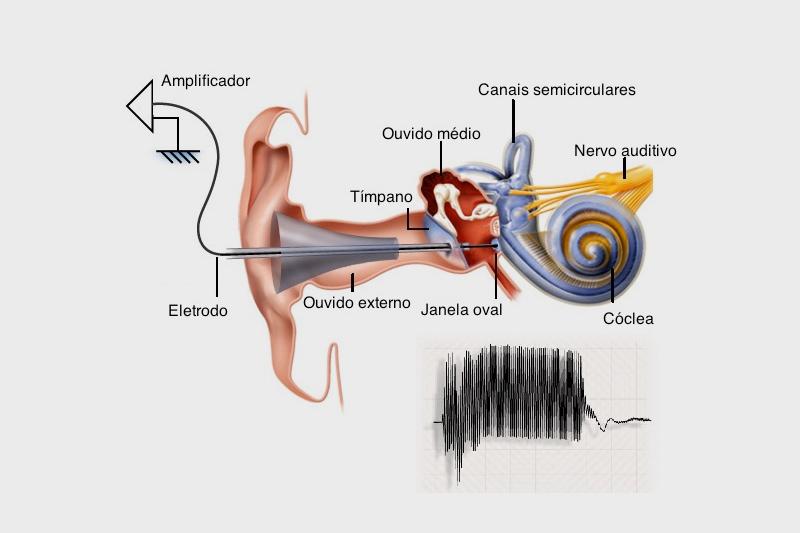 Eletrococleografia