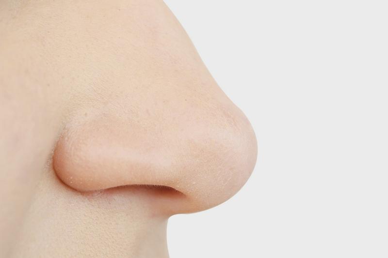 Redução de Fratura Nasal