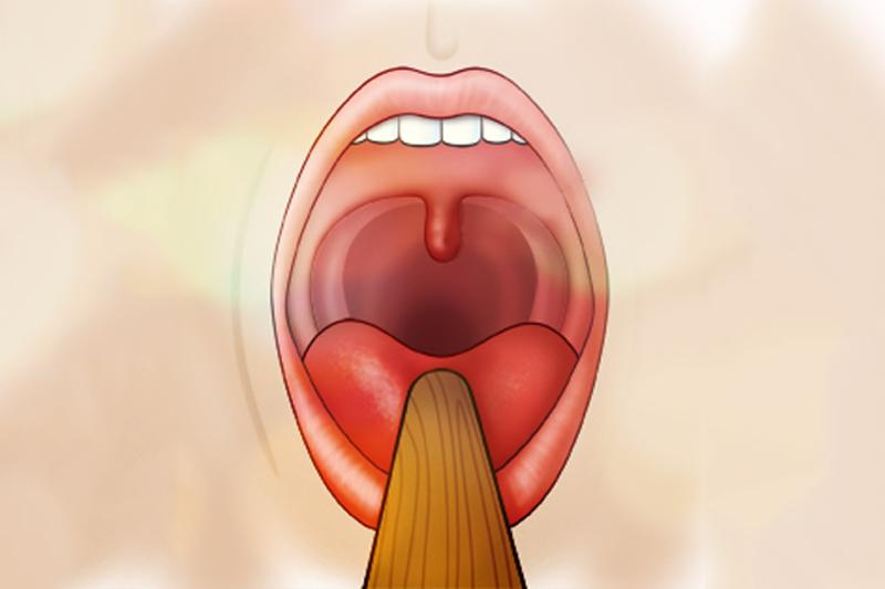Úvulopalatofaringoplastia