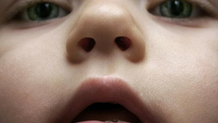 Sangramento no nariz: o que fazer?